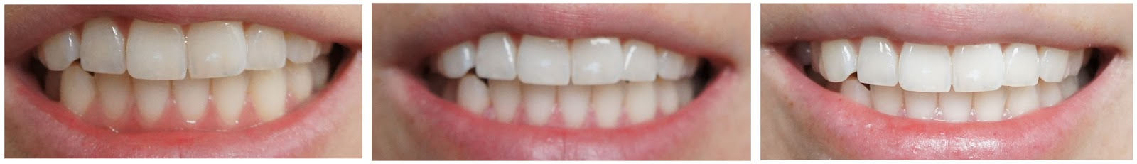 Endlich weiße Zähne